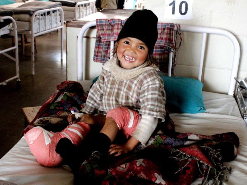 disabilities, nepal, children, club foot